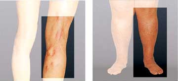 Inflammation of the veins with striped reddening and chronic venous insufficiency with swelling and skin discoloration