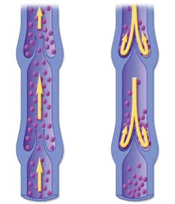 Venous Disease is progressive and left unchecked may result in a more serious condition.