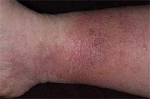 stasis-dermatitis1