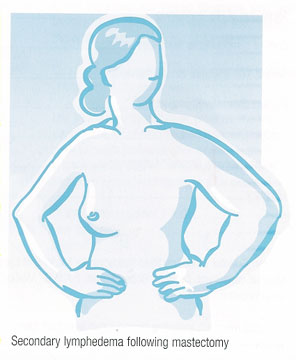 secondaryLymphedema