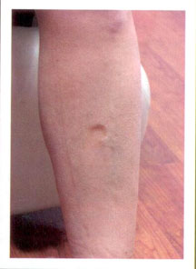 Pitting edema can be seen in thin as well as heavy patients.  Support hose and exercise can help you