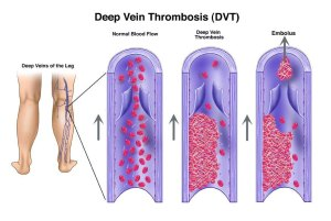dvt formation SupportHoseStore.com