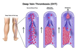 DVT formation SupportHosePlus.com