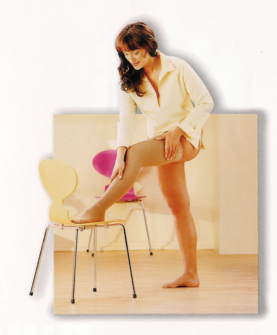 Lymphedema garments are necessary after reduction of swelling