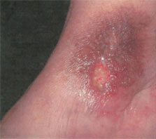 Red dress venous ulcers