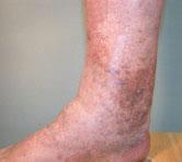 ChronicVenousInsufficiency