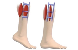 In order to move the blood against gravity the leg   In order to move the blood against gravity the leg Calf Contraction and Relaxation muscles squeeze the deep veins to move the blood back to the lungs and heart.muscles squeeze the deep veins to move the blood back to the lungs and heart. Wear support hose to prevent DVT